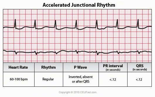 28_accelerated_junctional_rhythm