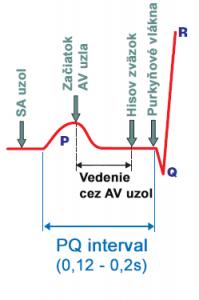 av-node-delay